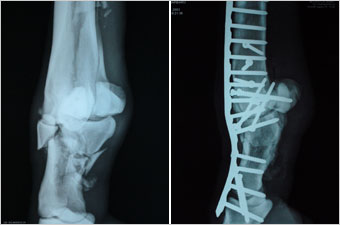 Barbaro's shattered  leg before and after surgery. Images: University of Pennsylvania/New Bolton Center.